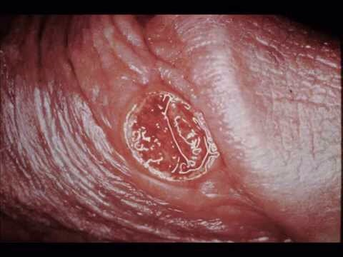 Can you get syphilis from oral sex